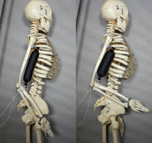 Artificial Muscle Lift Skeleton's Arm